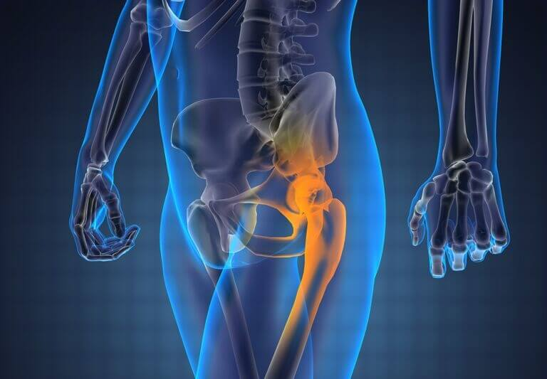 artroza bilaterală a articulațiilor șoldului