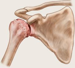artroza brâului umarului uman