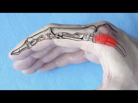 artroza deformantă a mâinilor tratamentului de gradul I