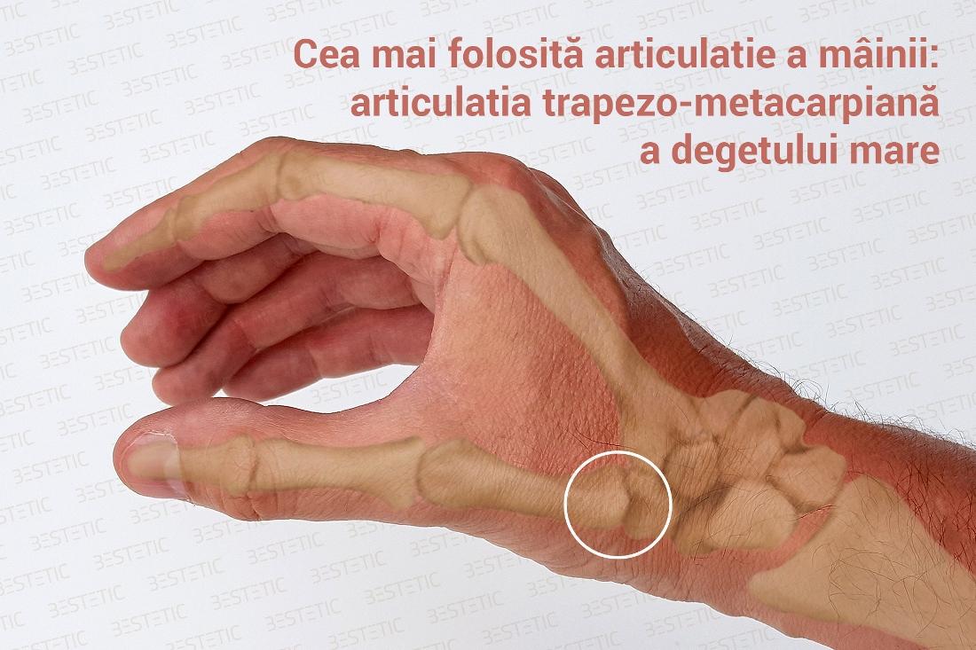 artroza mâinilor dureri articulare de la alergare