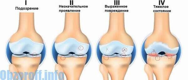 artroza sinovită a articulațiilor dureri articulare umflate cu degetul