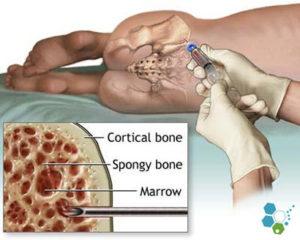 artroza tratamentului cu celule stem ale genunchiului consultarea durerii articulare