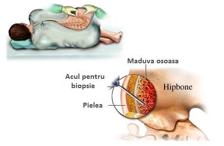artroza tratamentului cu celule stem ale genunchiului gel de flexen pentru articulații