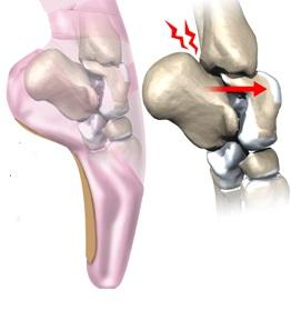 Unguente pentru durere în articulația gleznei