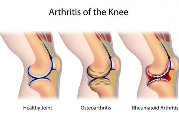 osteoartroza tratamentului articulațiilor mari artrita reumatoidă a tratamentului simptomelor genunchiului
