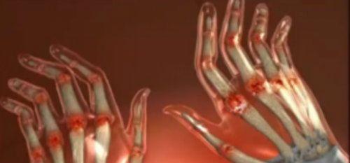 Articulațiile din palmele mâinilor doare