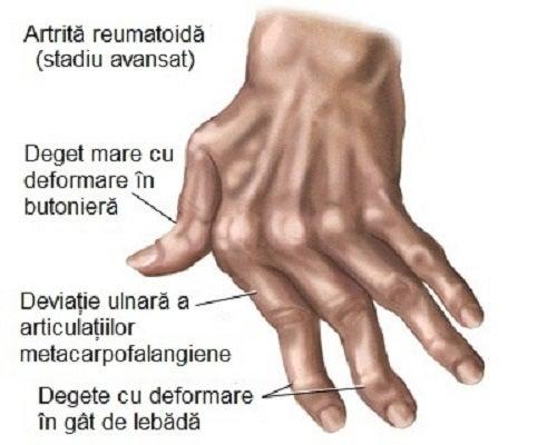 regim de tratament cu artrita degetelor