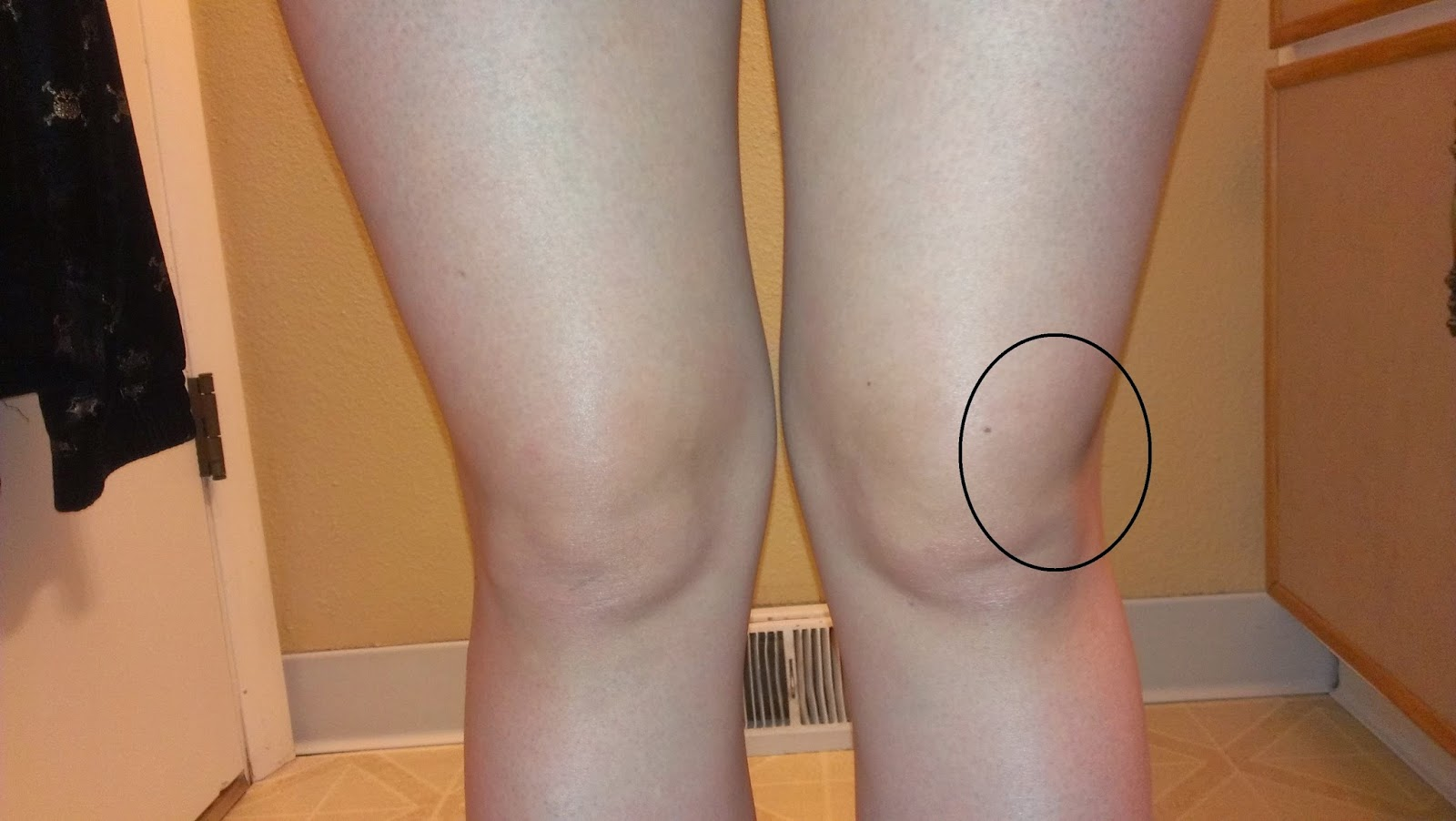 tratament ortopedic articular artroza prognosticului tratamentului gleznei