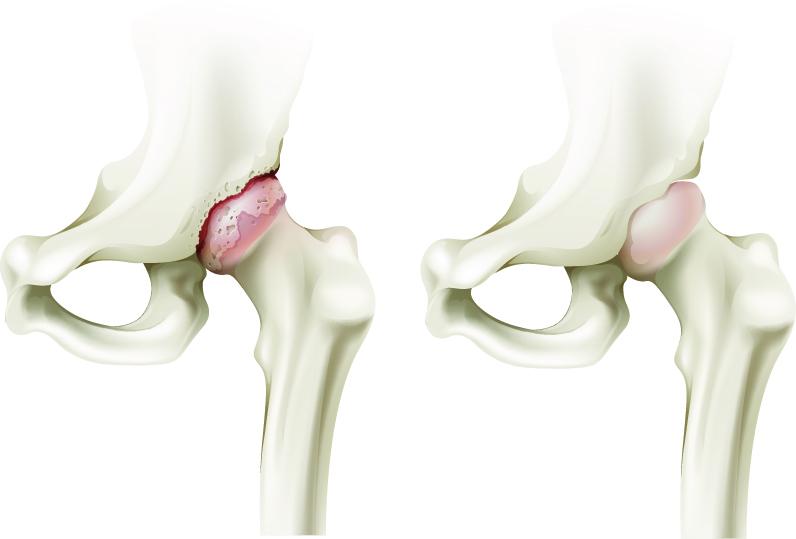 Tratamentul artrozei de șold de gradul II