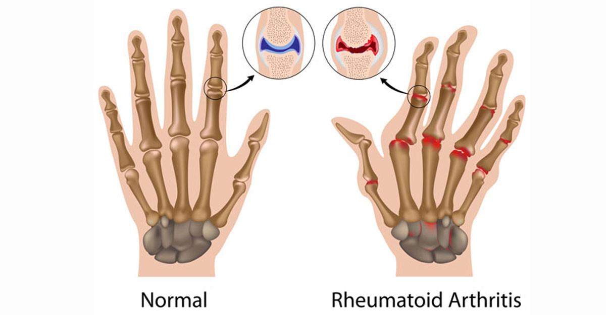 medicamente tratamentul osteochondrozei cervicale
