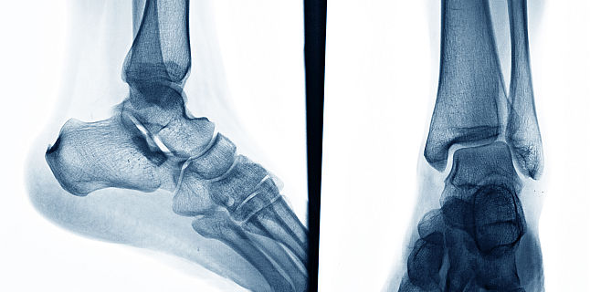 prepararea osteochondrozei cervicale