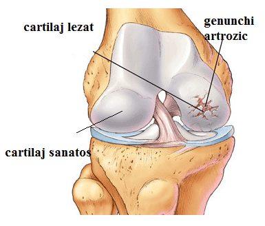 cum să tratați medicația pentru artroză la genunchi