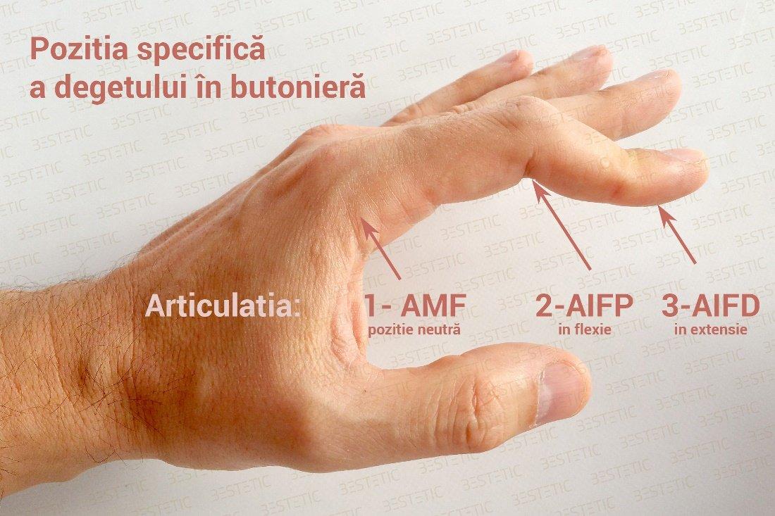 degetul index al durerii articulare a mâinii drepte