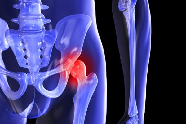 artroza de gradul doi al tratamentului articulației șoldului