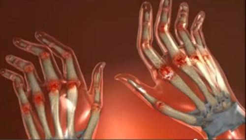 boala articulara genetica