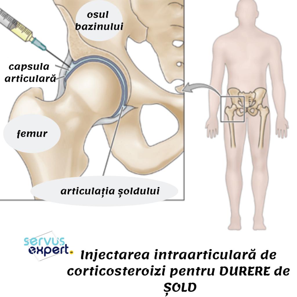 când se înclină, articulația șoldului doare articulații umflate pe picioare și brațe