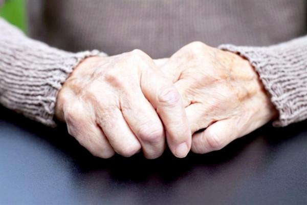 cum arată mâinile cu artrita