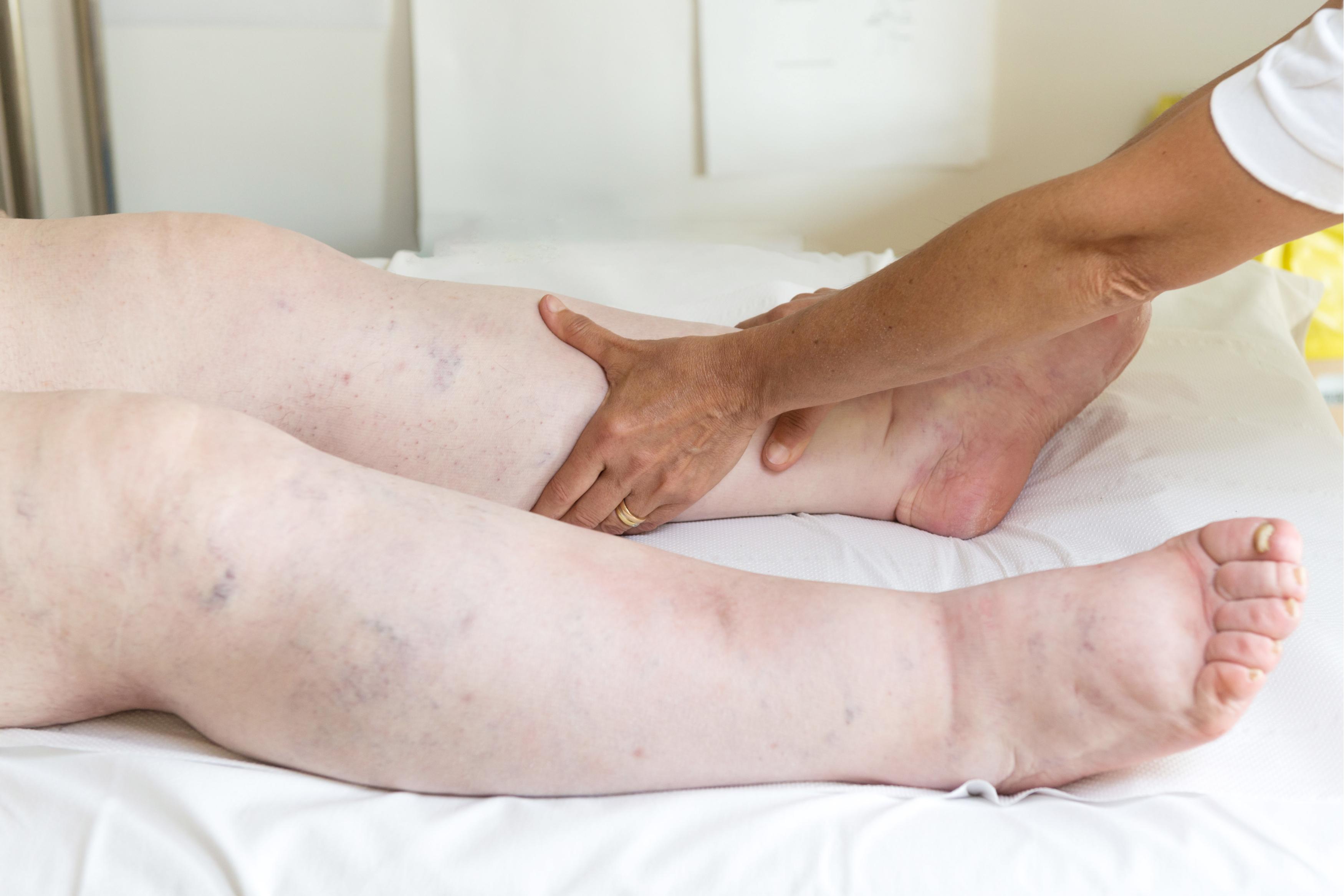 cum să alinați umflarea articulațiilor picioarelor