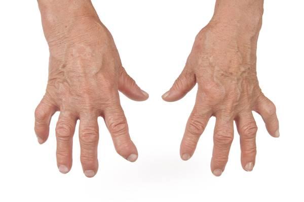 umflarea picioarelor în apropierea articulațiilor