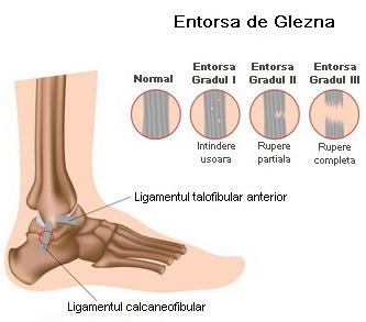 deteriorarea tendoanelor gleznei de ce durează articulația în palma mâinii