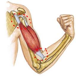 Deteriorarea ligamentelor articulației cotului, Ruptura de ligamente