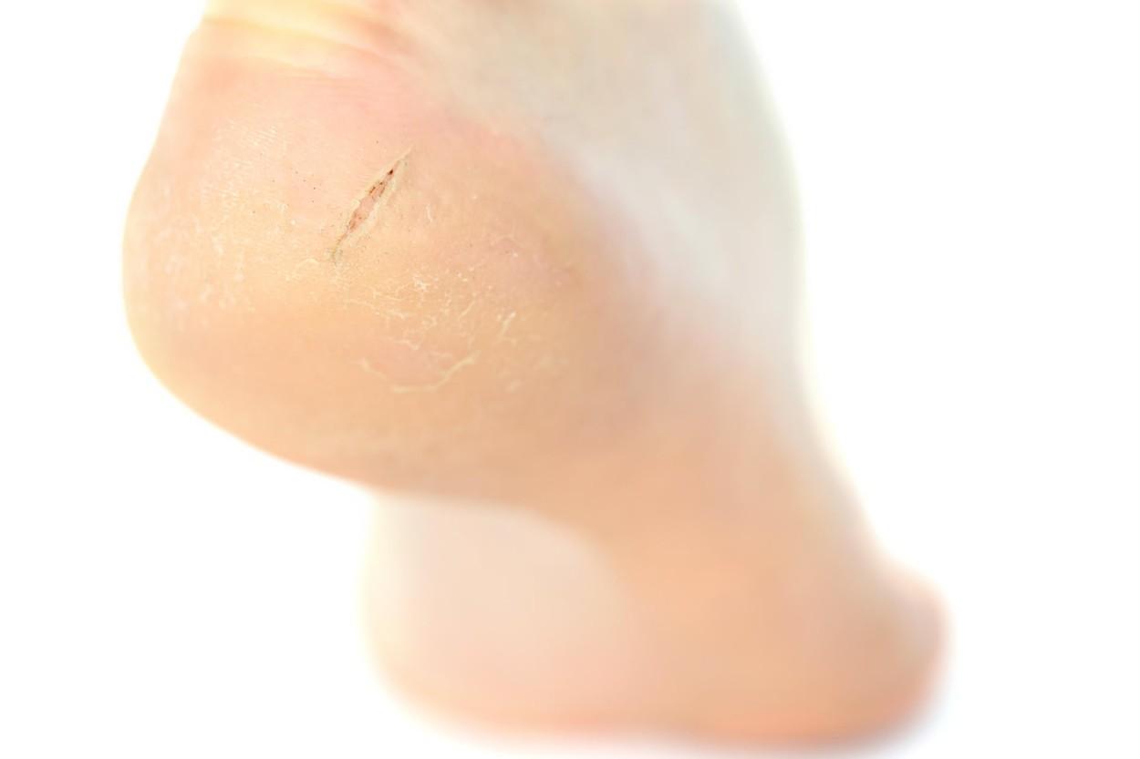 Crema protectoare pentru calcaie -Doctor Soleil, gr (Pentru picioare) - infostraja.ro