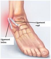 Deteriorarea ligamentului deltoid al gleznei - Diagnosticul leziunii ligamentului gleznei