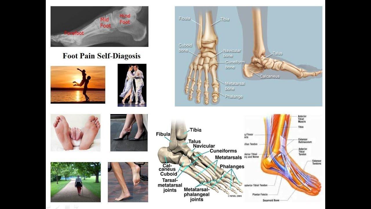 durere ascuțită în articulațiile piciorului cum se tratează artroza la nivelul picioarelor