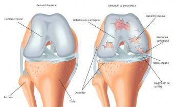 durere cronică în articulațiile genunchiului inflamația tratamentului articulației genunchiului cu dimexid