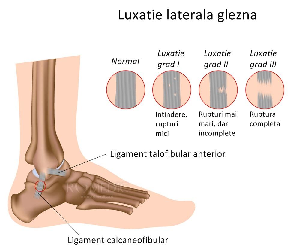 durere la glezna piciorului