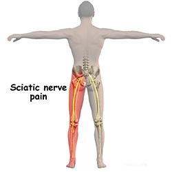artroza articulației umărului ce este