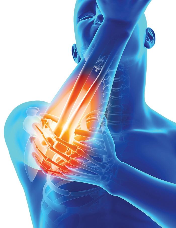 durere în fiecare articulație Articulații DOA la 2 grade de tratament