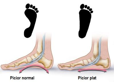 durere în jurul articulației piciorului bursită și artroză a articulației umărului