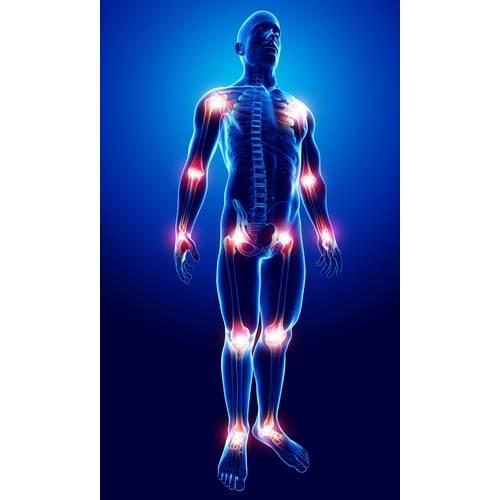dureri articulare acute decât anesteziere genunchiul este rănit. comun