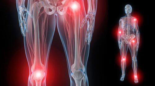 dureri articulare la încheieturi și genunchi dureri musculare ale articulațiilor umărului