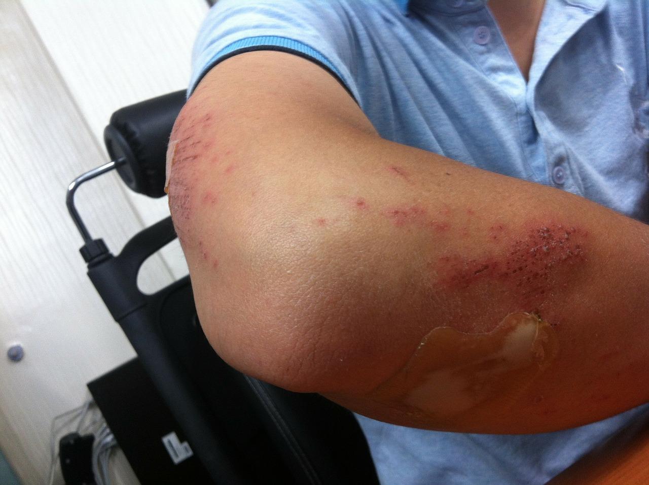 Dureri de cusături ale articulațiilor brațului