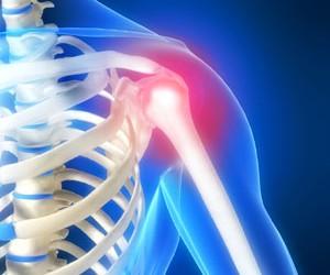 dureri de umăr cu iradiere tratamentul articular la șoimi