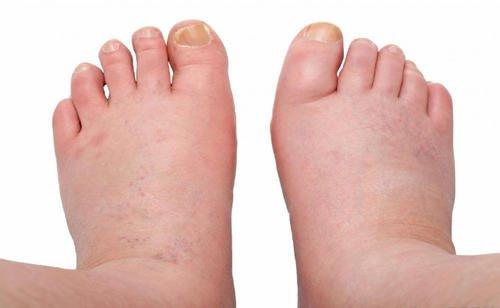 picior umflat tratament tratamentul artrozei cu insuficiență renală cronică