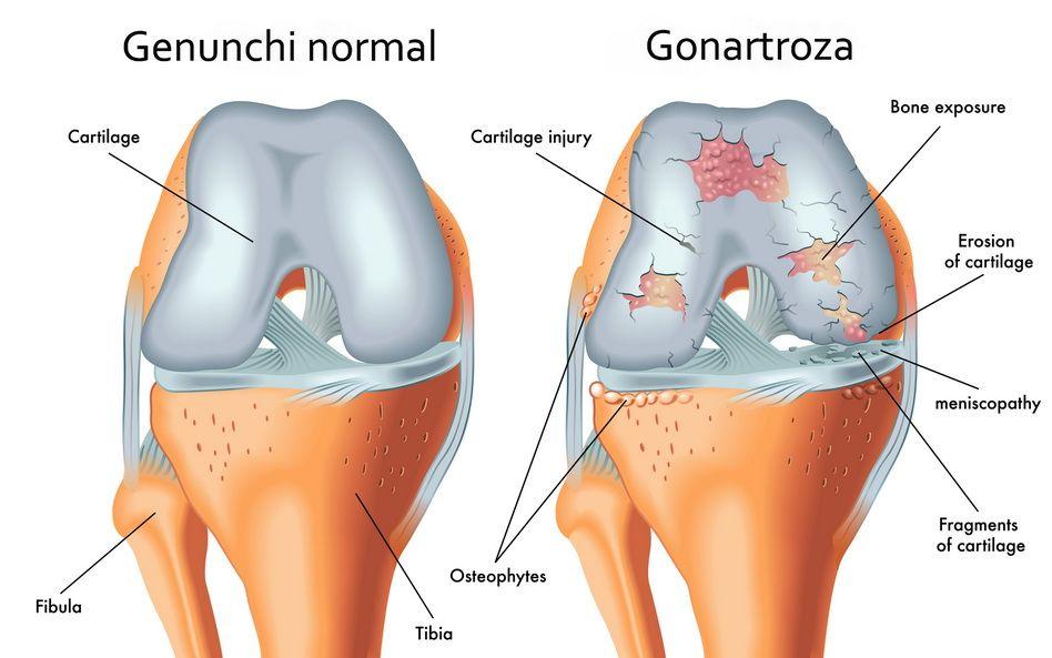 forma inițială de tratament cu artroza genunchiului cum să alinați durerea cu artroza articulațiilor