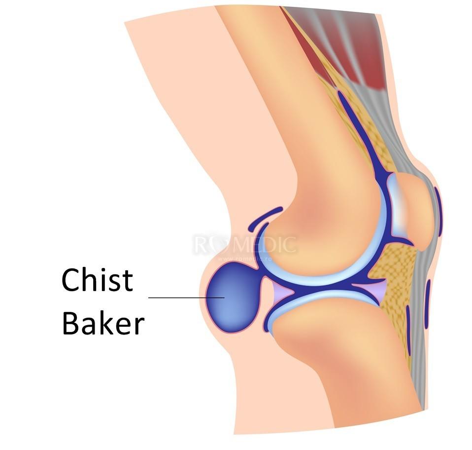 boala adolescenței articulației genunchiului dureri articulare la nivelul picioarelor și șoldurilor