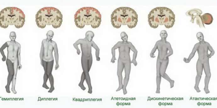 Tetrapareza spastica – cauze, simptome si tratament | Centrokinetic