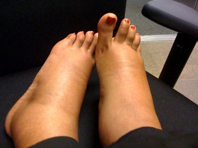 umflarea picioarelor articulațiilor