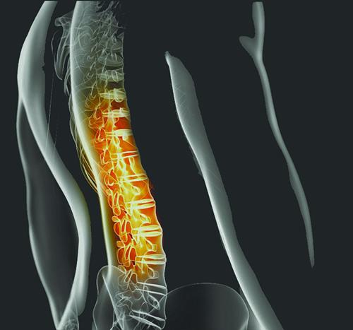 Artroza tratament coral club ,afiș raport despre osteoartroză și osteoporoză