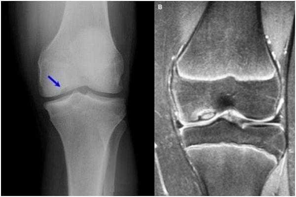deformarea artrozei articulației genunchiului de 3-4 grade