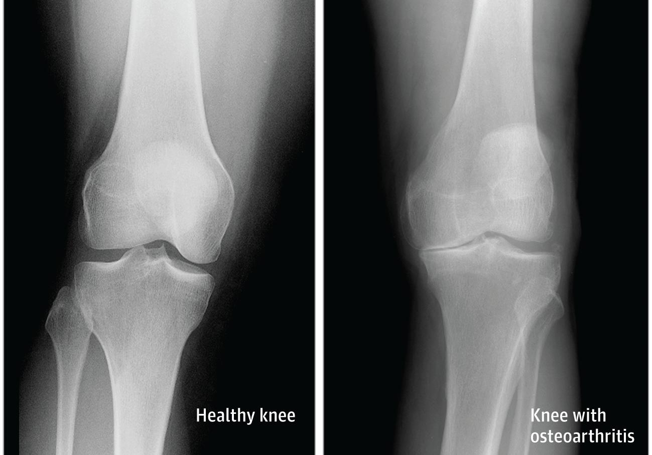 Făcând clic în articulația genunchiului, Face clic pe articulații fără durere