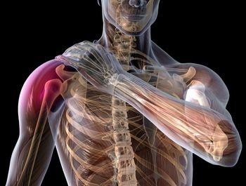 cum să tratezi artrita în umăr Movalis pentru articulații