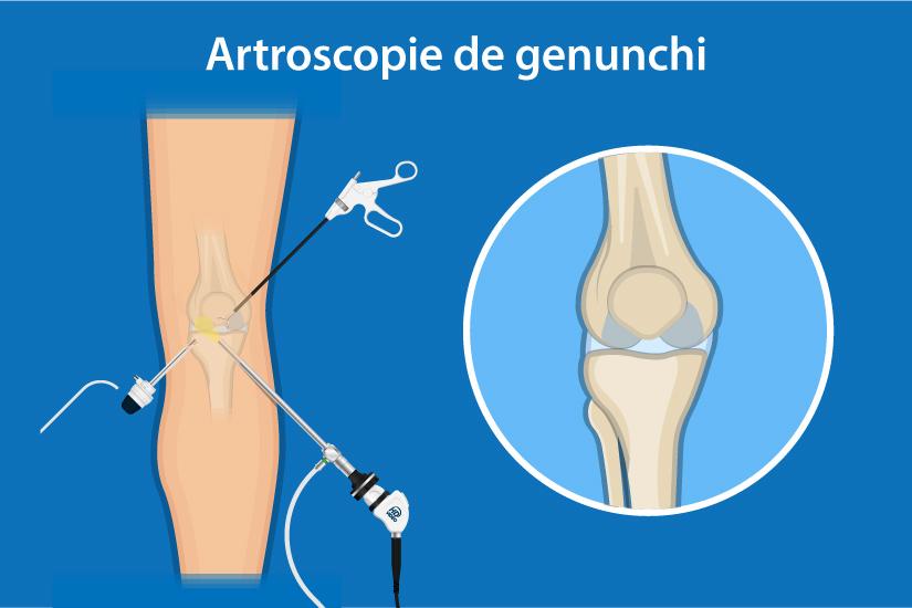 Menisc vătămarea tratamentului articulației genunchiului. FISURA SI RUPTURA DE MENISC