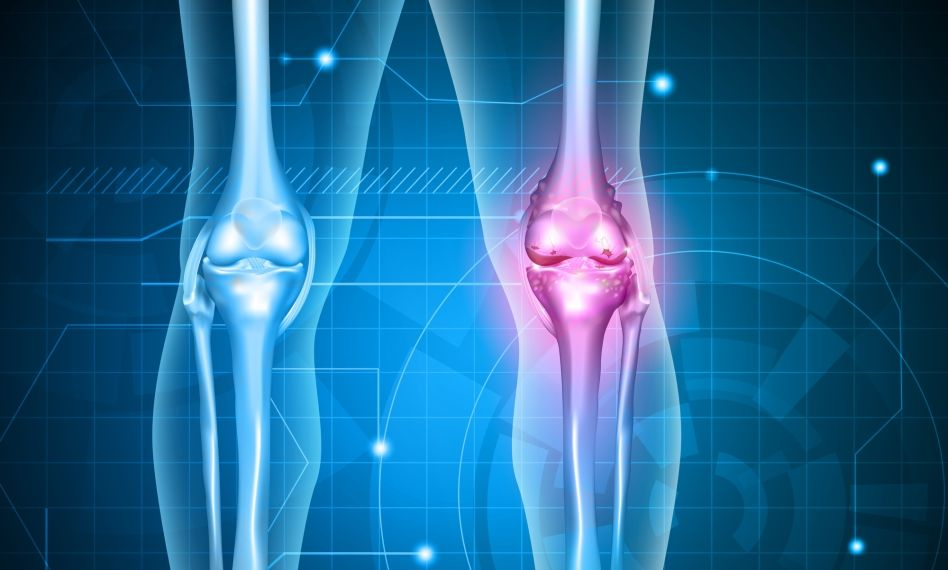 forma inițială de tratament cu artroza genunchiului