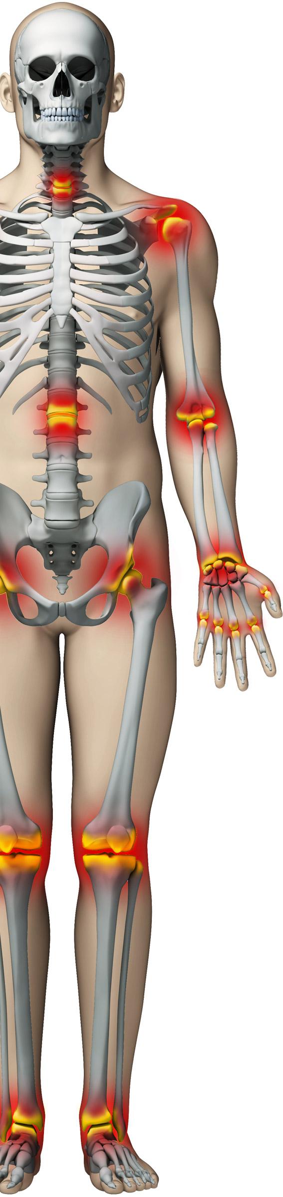 Fuga de dureri articulare. Genunchii dureroși când mergeți pe scări. Tratarea genunchilor dureroși
