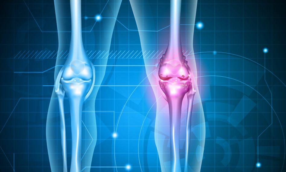 gonartroza 3 grade ale tratamentului articulației genunchiului